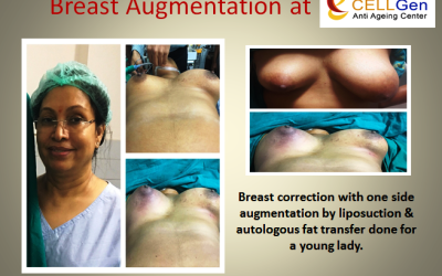 breast augementation