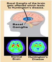 huntington-disease