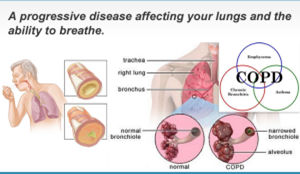 chronic-obstructive-pulmonaary-disease