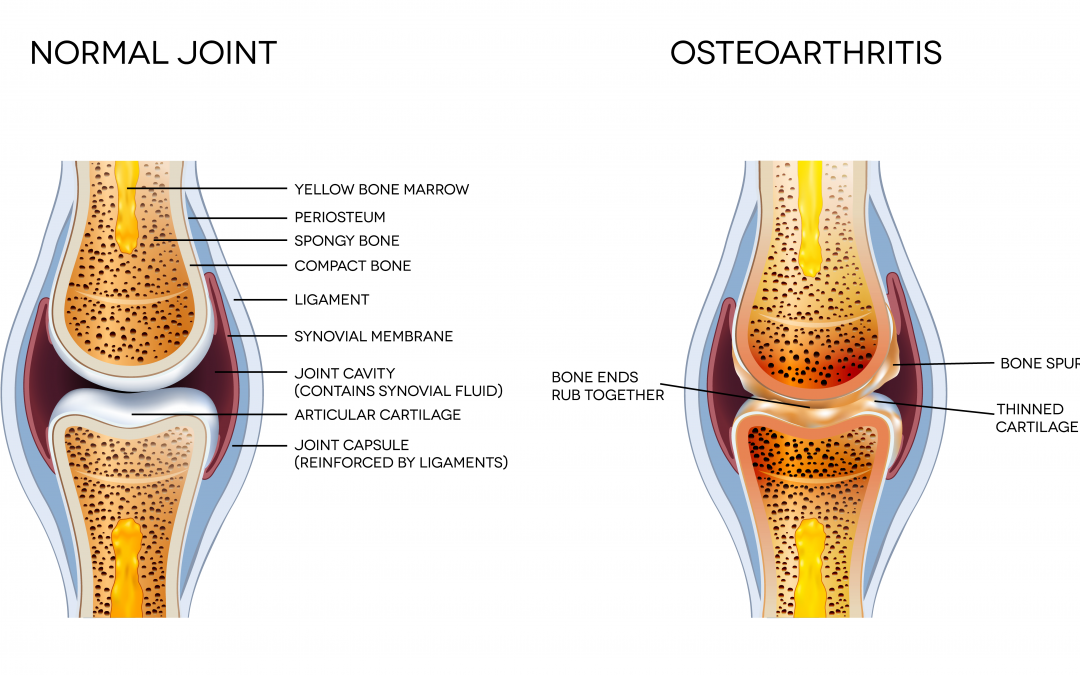 Arthritis Osteochondrosis Diseases Of The Musculoskeletal System