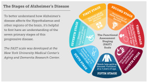 StagesOfAlzheimers_Infographic