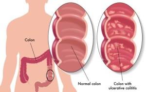 Ulcerozni-kolitis1